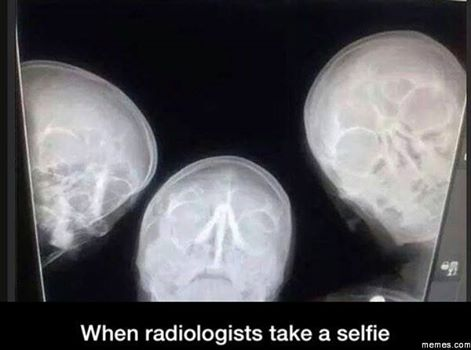 when-radiologists-take-a-selfie